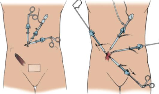 nefrectomia-laparoscopica