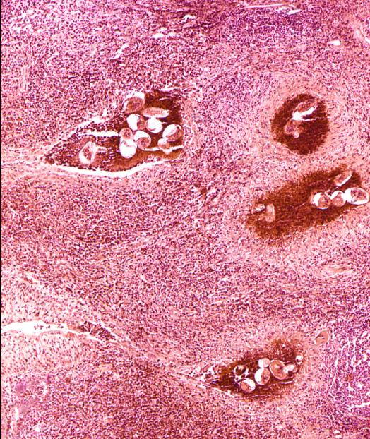 cancer de riñon