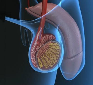 Disfunción eréctil: síntomas, causas, diagnóstico y tratamiento