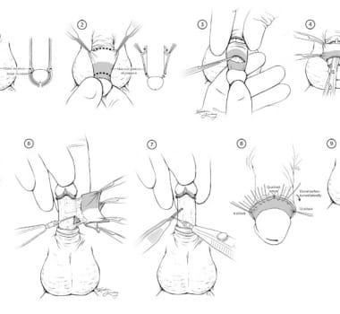 Lo que deben saber sobre las circuncisiones
