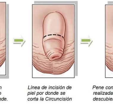Cuidados previos y posteriores a una circuncisión