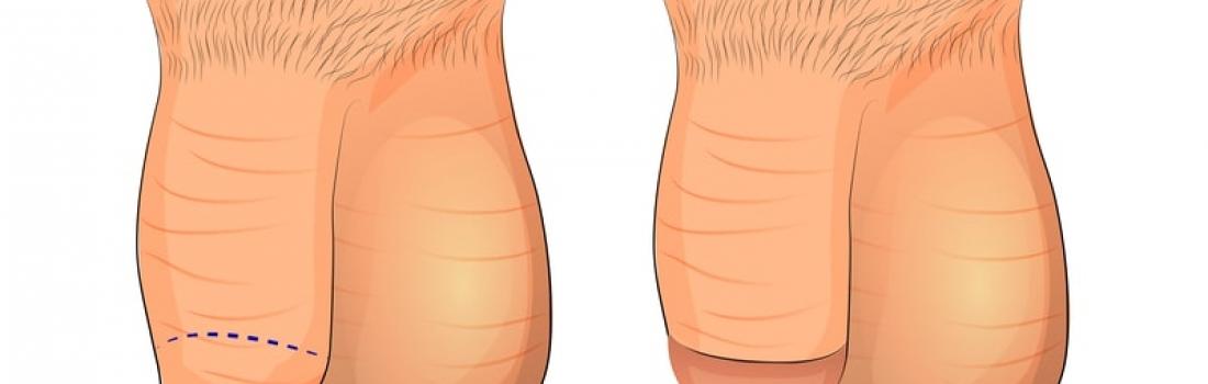 Especificaciones generales de la circuncision
