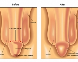 ¿Conoces las principales virtudes de la Circuncisión? Aquí te las decimos