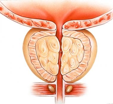 Cáncer de prostata: factores que lo causan y otras características