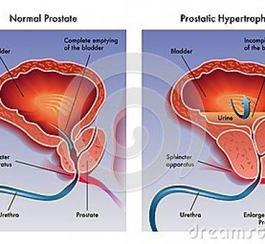 La importancia de acudir de manera periódica con el especialista en urología