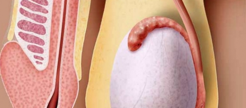 FAQ: Preguntas frecuentes sobre la reversión de la vasectomía