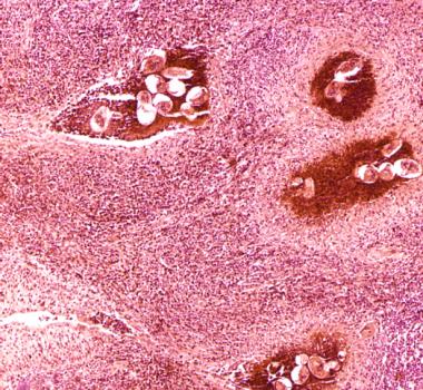 Sobre el cáncer de riñón y sus tipos