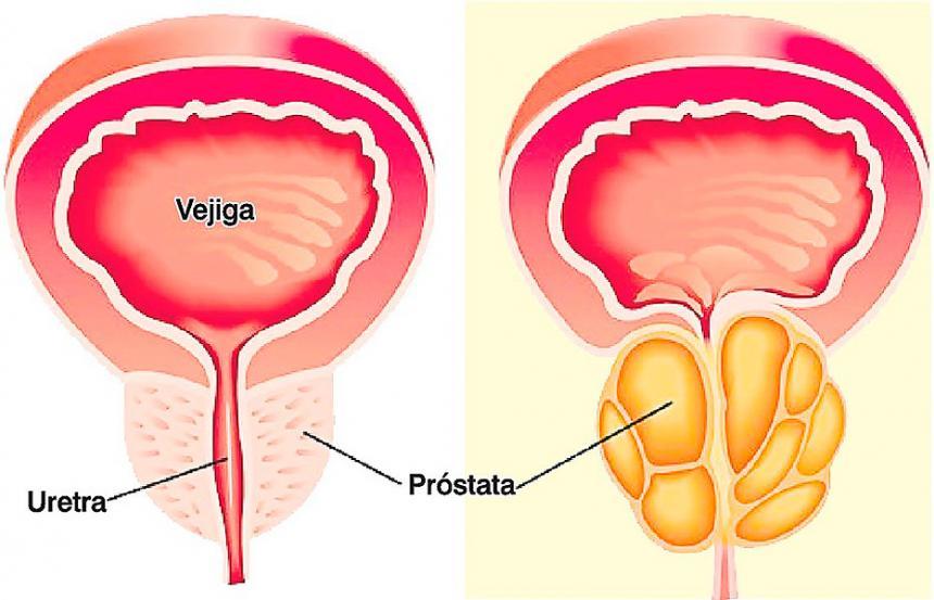 cual es la funcion de la glandula prostática